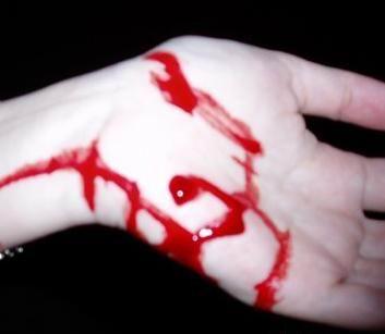 女生割手的图片_割烂手的照片_男子遭割喉断手_男子被债主割喉断手_捡菜被割手 ...